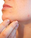 aesthetic-dermatology-market-growth
