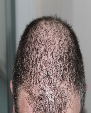 Global Alopecia Market Size